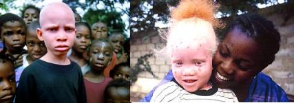 negros-albinos